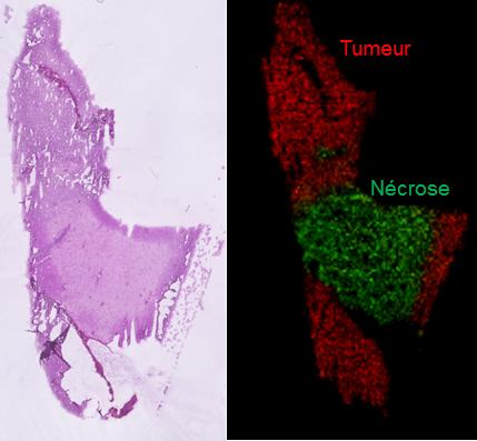Image moléculaire d'une tumeur cérébrale de type Glioblastome